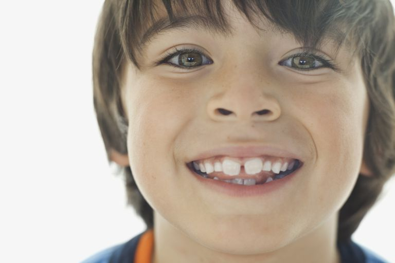 Early Orthodontics at Kitsap Kids Dentistry in Bremerton, WA